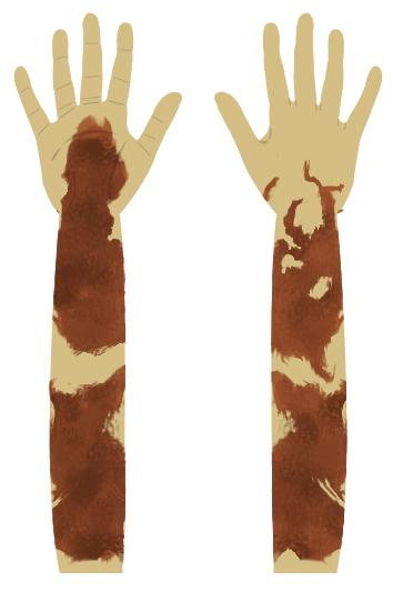 of Draconus' right arm, drawn by me